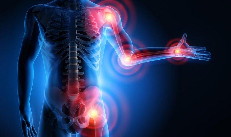 Артроз, артрит, бурсит | Легамед